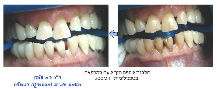 הלבנת שיניים בשעה במרפאה, גיא וולפין