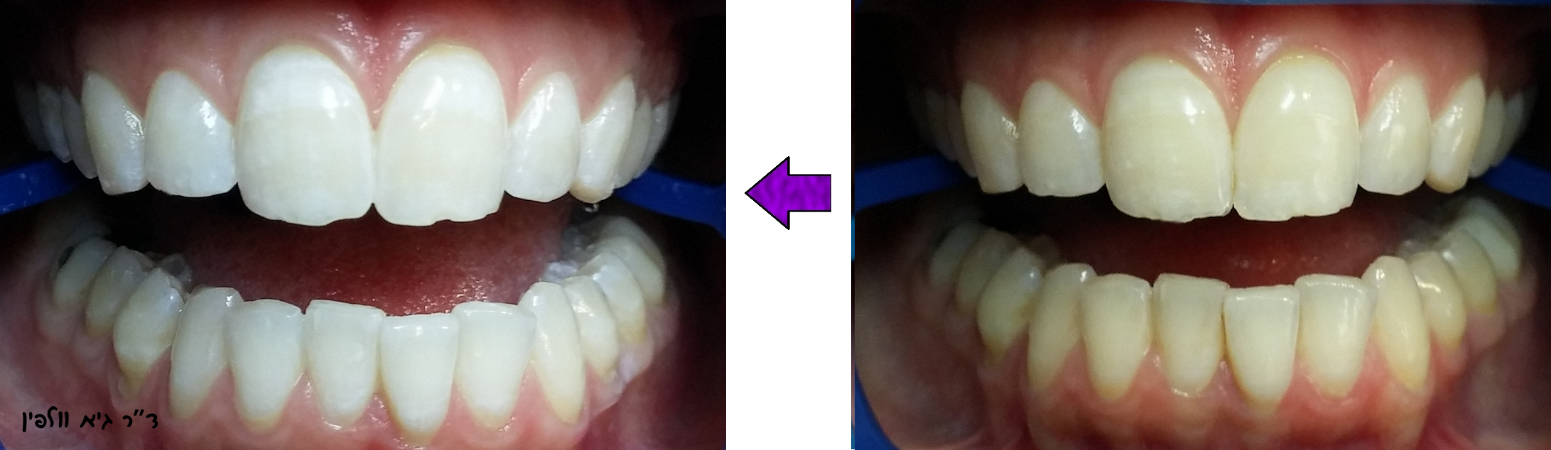 הלבנת שיניים תוך שעה במרפאה, ד''ר גיא וולפין, אסתטיקה דנטלית, ZOOM