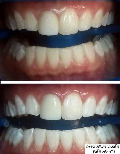 """הלבנת שיניים בטוחה ומקצועית תוך שעה, ד""""ר גיא וולפין, ZOOM"""