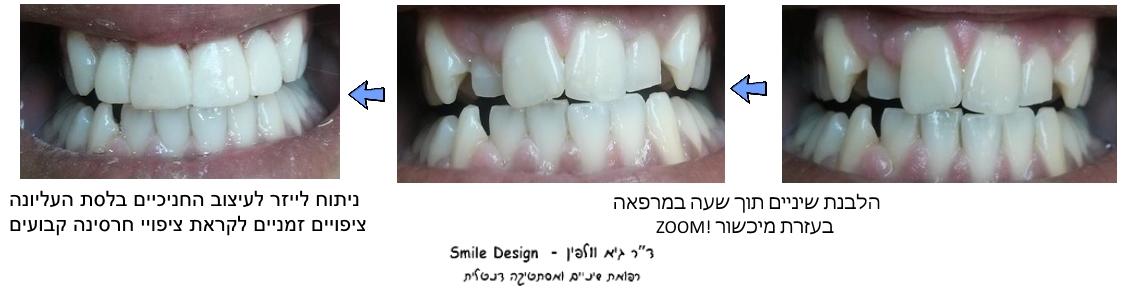 הלבנת שיניים, ניתוח לייזר בחניכיים, ציפויי חרסינה, גיא וולפין