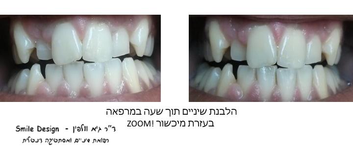 הלבנת שיניים תוך שעה במרפאה, גיא וולפין