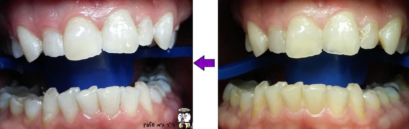 ZOOM  לפני ואחרי הלבנה של השיניים, גיא וולפין