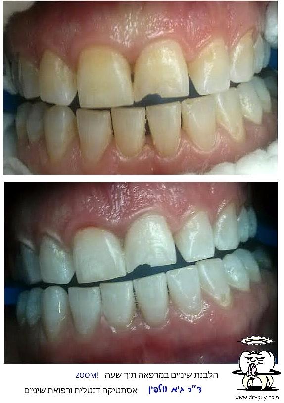 הלבתנ שיניים ללא פגיעה בחומר השן, זום, אסתטיקה דנטלית, גיא וולפין