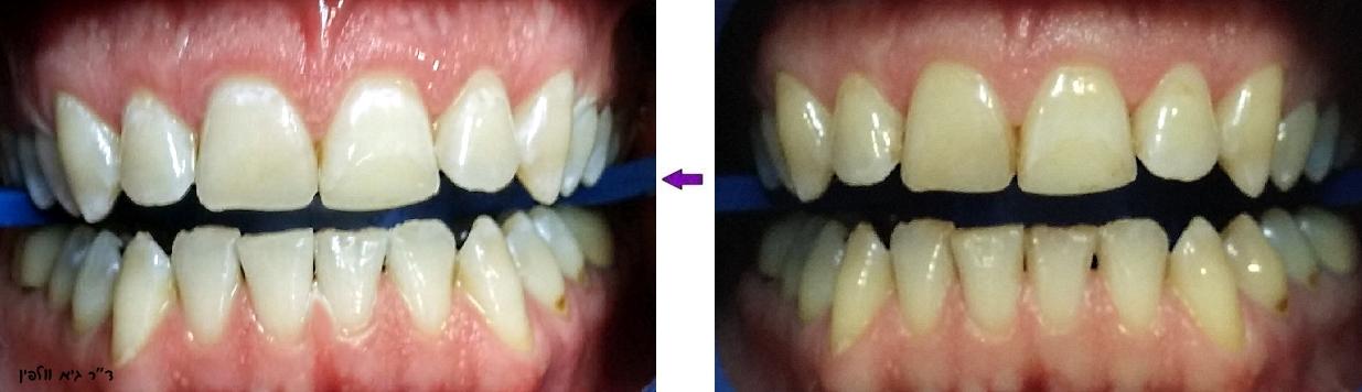 אסתטיקה דנטלית - הלבנת שיניים במרפאה תוך שעה, גיא וולפין