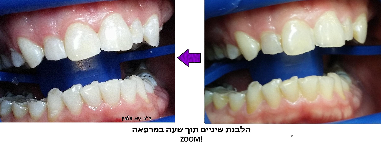 הלבנת שיניים תוך שעה במרפאה, ZOOM, ד''ר גיא וולפין, אסתטיקה דנטלית